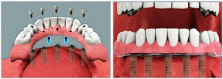http://images.comunidades.net/cli/clinicaciso/Fixed_Implant_Supported_Prosthesis_2.jpg