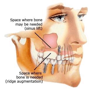 sinus1