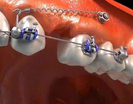 http://images.comunidades.net/cli/clinicaciso/Mini_implantes_ortodonticos_1.jpg