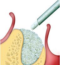 http://images.comunidades.net/cli/clinicaciso/Preenchimento_osseo_imediatamente_apos_extracao_dentaria_1.jpg