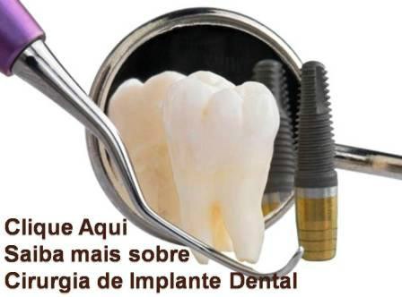http://images.comunidimplades.net/cli/clinicaciso/Slide1_13.JPG