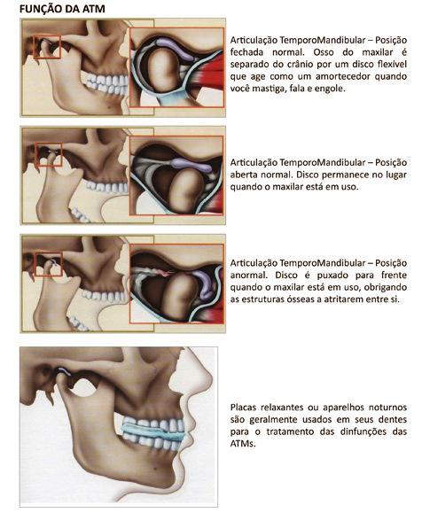 http://images.comunidades.net/cli/clinicaciso/atm_placa_bruxismo.jpg