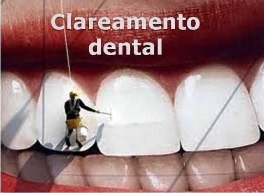 http://images.comunidades.net/cli/clinicaciso/banerclareamento.jpg