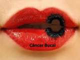 http://images.comunidades.net/cli/clinicaciso/cancer_bucal.JPG