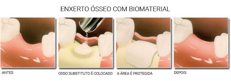 http://images.comunidades.net/cli/clinicaciso/dentista_niteroi_rj_blog_post_qual_a_necessidade_de_um_enxerto_osseo_para_colocacao_de_implante_dentario_2.jpg