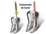 http://images.comunidades.net/cli/clinicaciso/endo.JPG