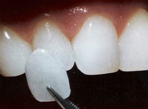 http://images.comunidades.net/cli/clinicaciso/facetaDental_Veneers_in_India.jpg