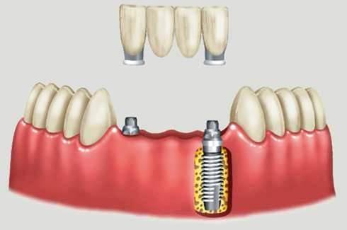 http://images.comunidades.net/cli/clinicaciso/fig_2._ppf_implante_esquema_implante1.jpg