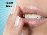 http://images.comunidades.net/cli/clinicaciso/herpes_peq.jpg