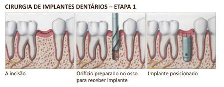 http://images.comunidades.net/cli/clinicaciso/implante3.jpg