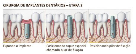 http://images.ci2omunidades.net/cli/clinicaciso/implante4.jpg