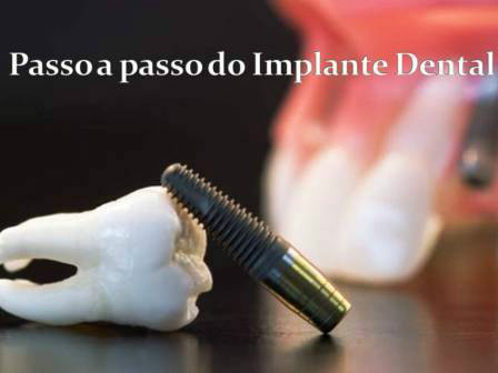 http://images.comunidades.net/cli/clinicaciso/implante_passoapasso.JPG