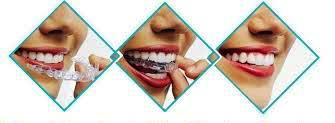 http://images.comunidades.net/cli/clinicaciso/invisible_orthodontics4.jpg