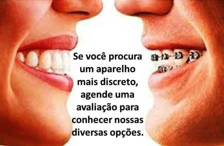 http://images.comunidades.net/cli/clinicaciso/ortoinvisivel.JPG