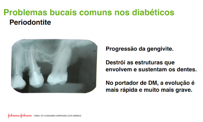 http://images.comunidades.net/cli/clinicaciso/periodontite.png