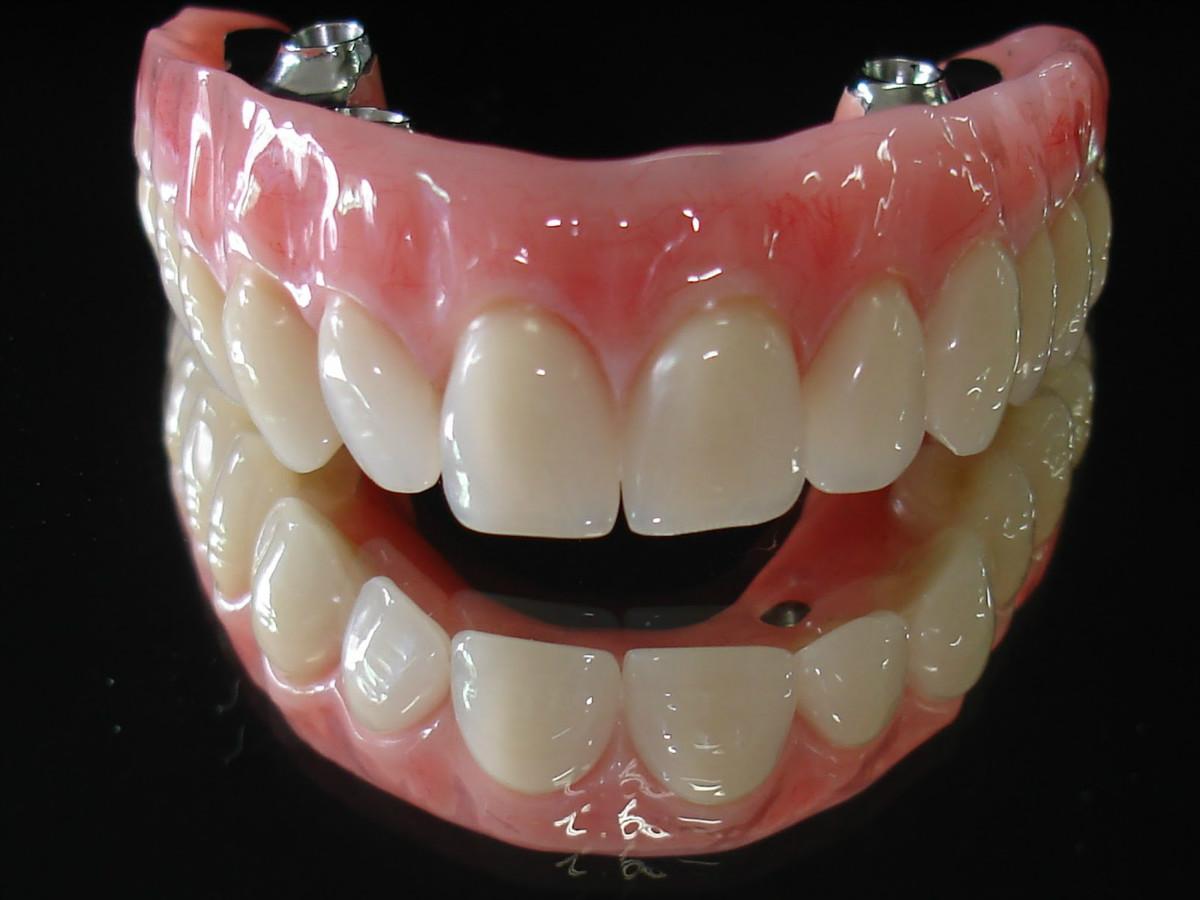 http://images.comunidades.net/cli/clinicaciso/protese_dentaria_Protocolo__1.jpg