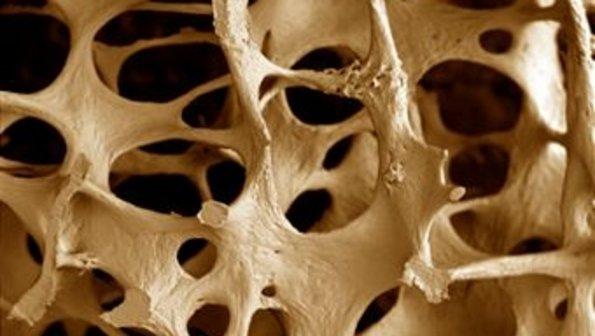 http://images.comunidades.net/enf/enfermagem/osteoporose.png