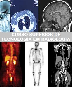 Curso Superior de Tecnologia em Radiologia