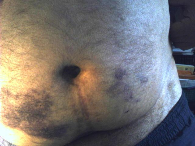 Tela Abstracta na barriga